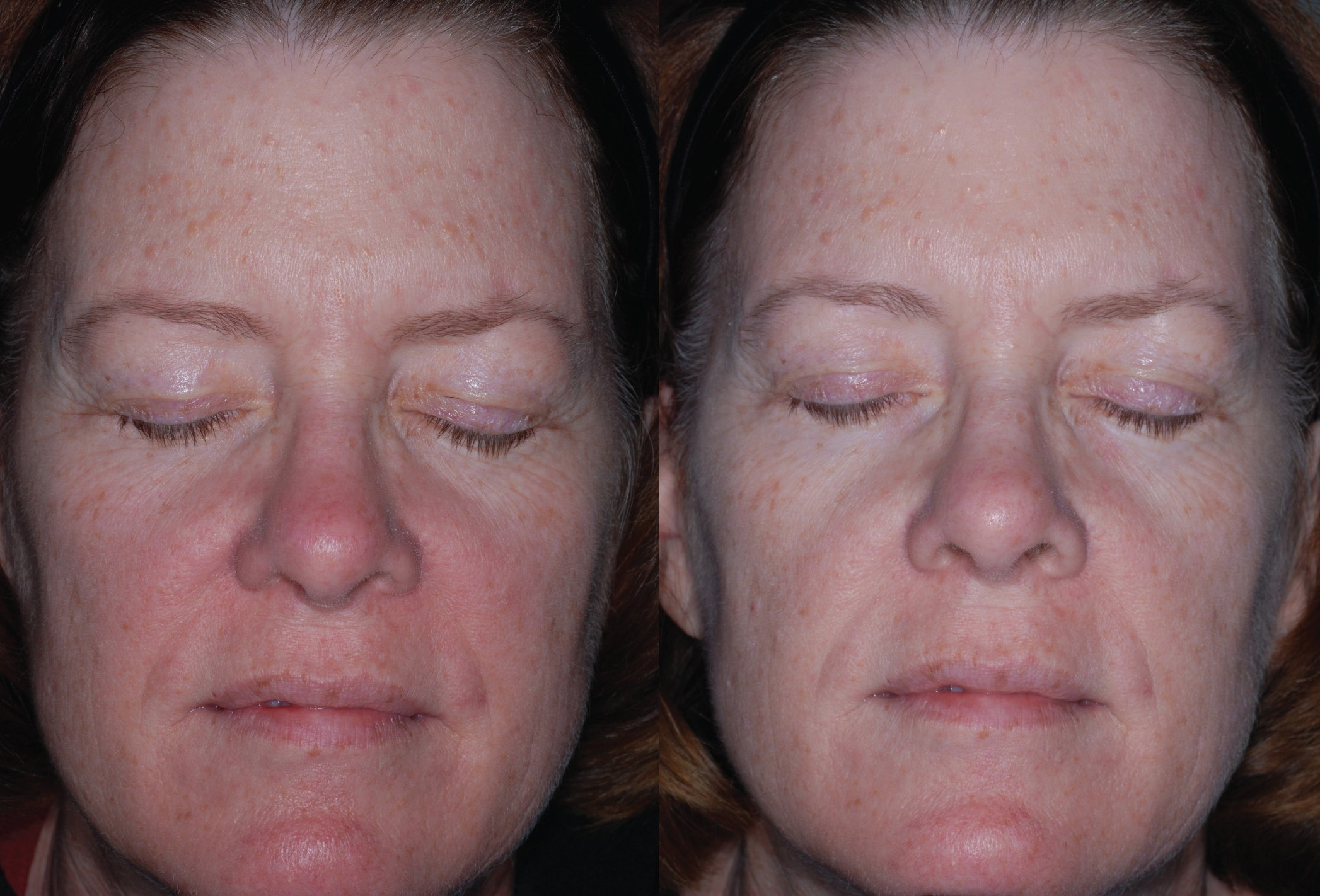 Rosacea behandeling / Obagi Medical