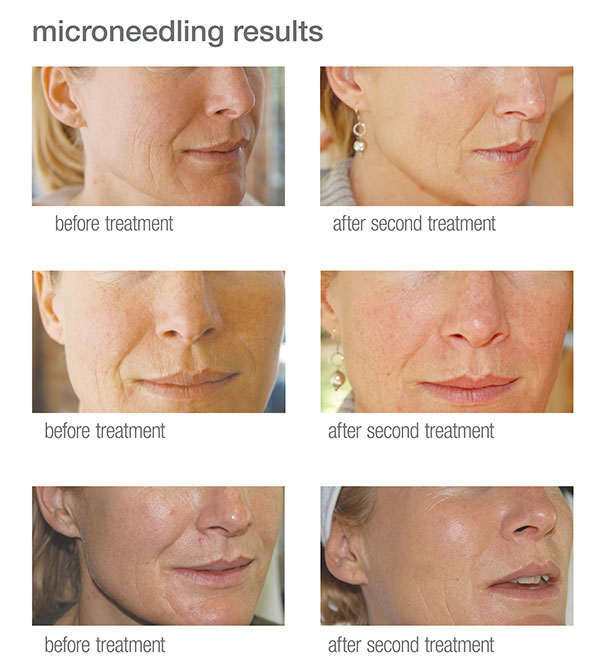 microneedling