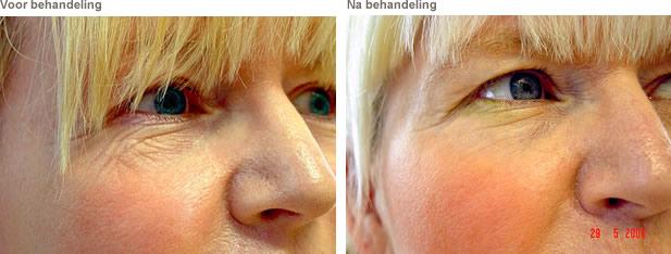 laserbehandeling gezicht ontharen