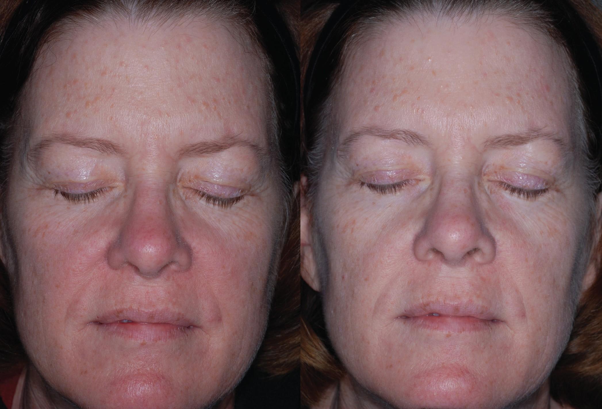 Rosacea behandeling / Obagi Medical