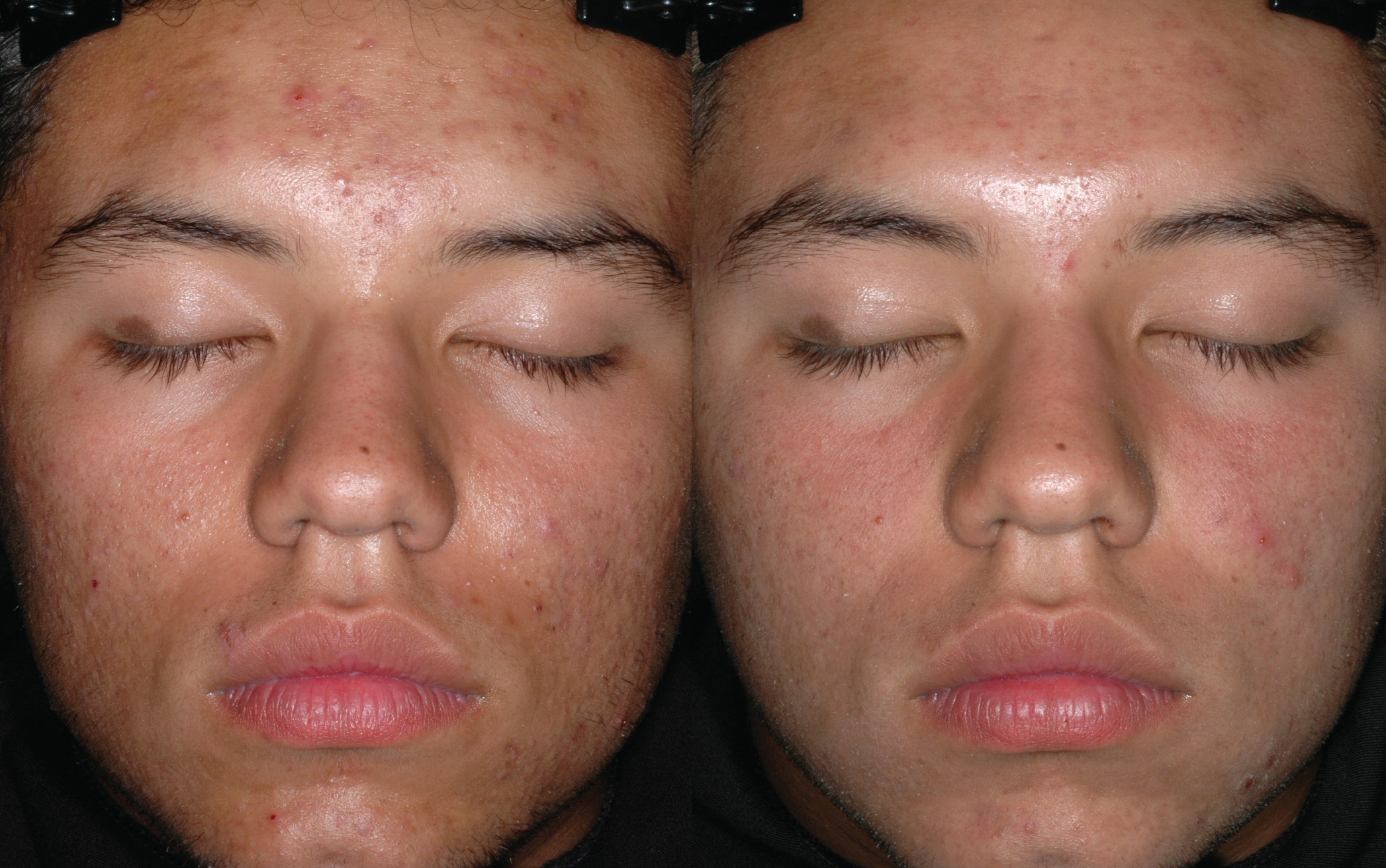 Acne behandelingen / Obagi Medical / ObagiClenziderm