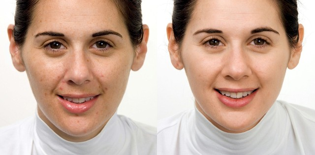Pigment behandeling / Zo Medical by Dr. Zein Obagi